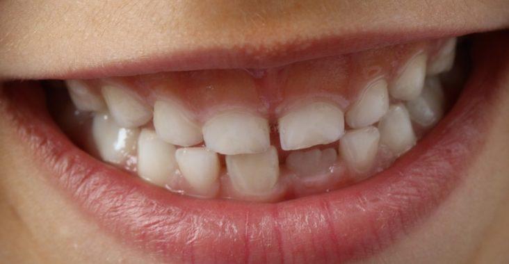 Der erste Zahnarzttermin Ihres Kindes